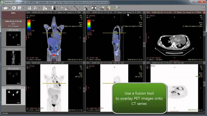 Image result for RadiAnt DICOM Viewer